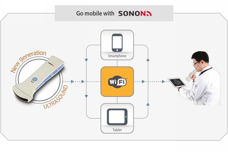 SONON is world's first wireless portable ultrasound equipment.